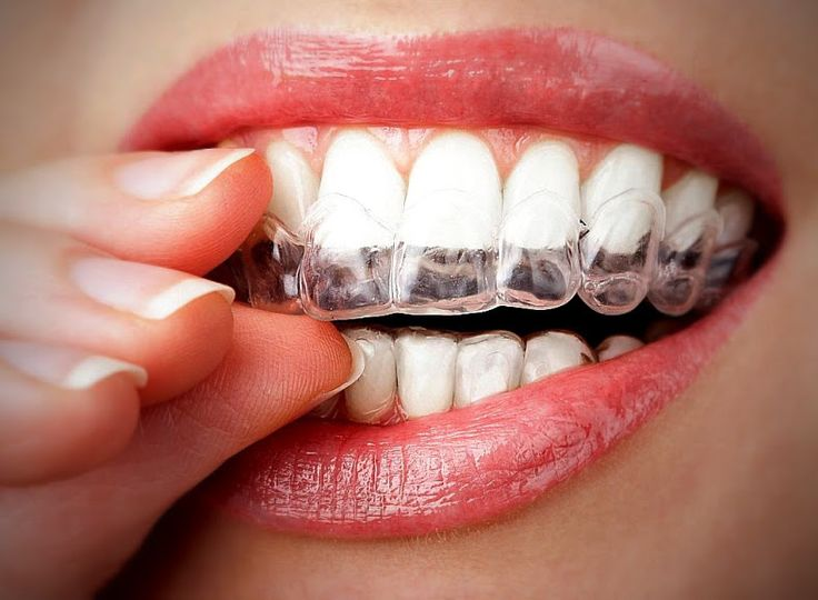 Interested in straighter teeth, but don't want braces? There are alternatives we'd love to go over with you! #dentistry