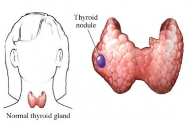 What Are Thyroid Nodules?