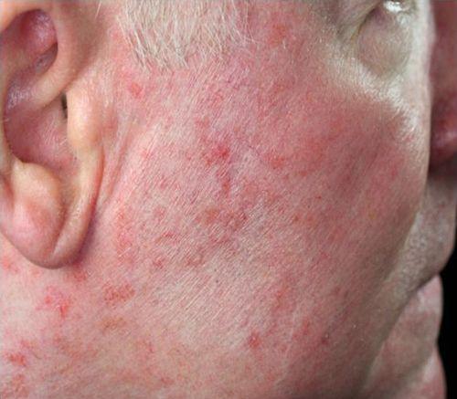 facial skin lesion
