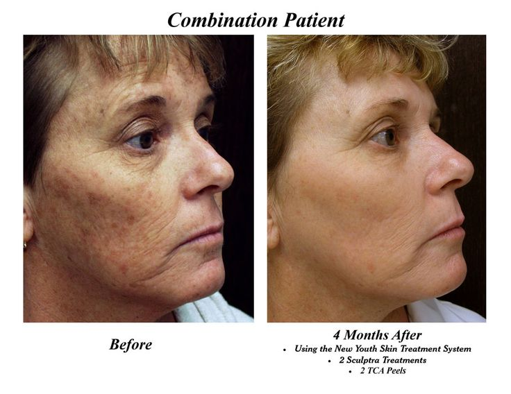 tca depigmentation peel - Google Search