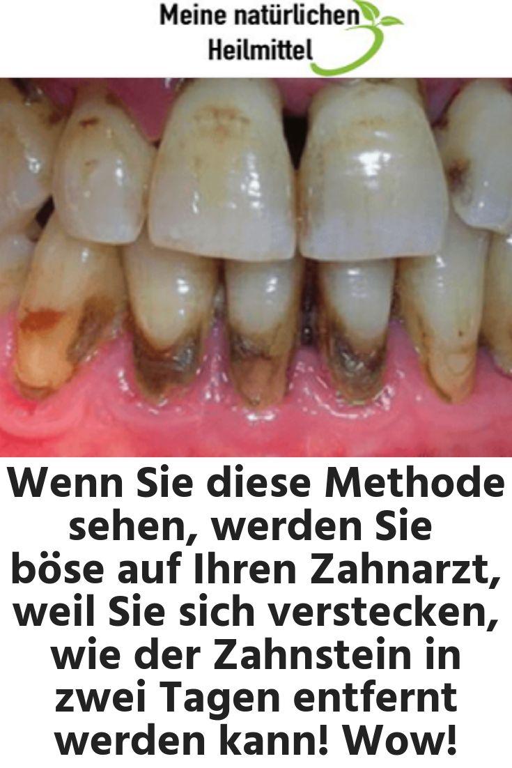 Wenn Sie diese Methode sehen, werden Sie wütend auf Ihren Zahnarzt sein, weil Sie … – Gesundheit