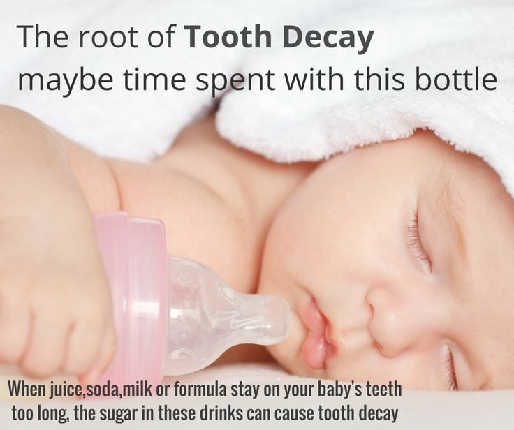 When juice,soda,milk or formula stay on your baby's #teeth too long, the sugar in these drinks can cause tooth decay.So don't use bottle as a pacifier and don't put your baby to sleep with a bottle. http://www.novadenttly.com/