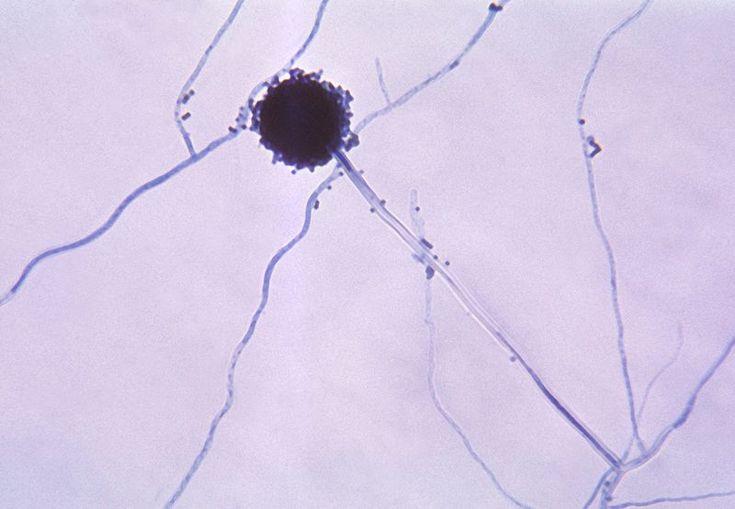 Aspergillus - Wikipedia, the free encyclopedia