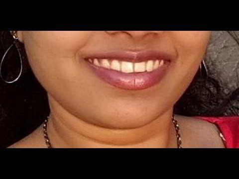 How to lighten the Dark Skin Around Mouth ?..Easy Remedies