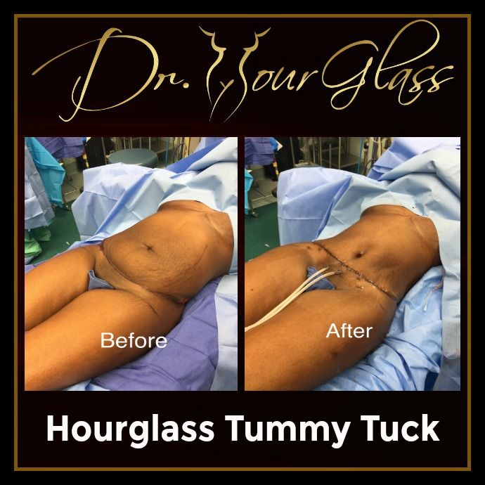 We are aware that women today are aiming to achieve an hourglass shape but let's be realistic that not everyone is born having that sexier feminine figure. But, today there is a procedure developed by Dr. Hourglass called Hourglass Tummy Tuck which is used to recreate the shape of a female body.