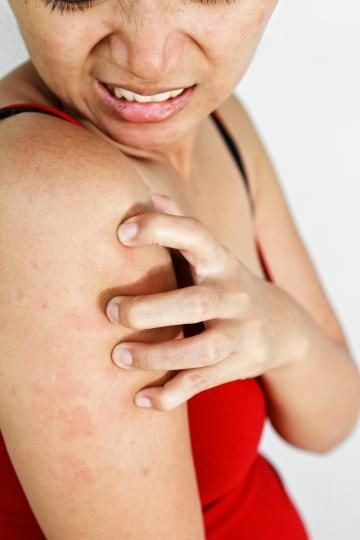 Learn what Keratosis pilaris is and how to treat it. We know these bumps are annoying and frustrating. Follow these simple at-home treatments that will help your bumps go away.