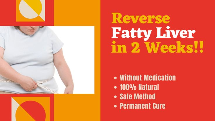 How To Reverse Fatty Liver Naturally with Home Remedies and Diet | Fatty liver. Home remedies. Fatty