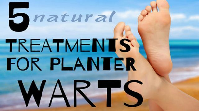 """Plantar warts are a common result of human papillomavirus growing on the skin. The term """"plantar"""" simply refers to the location of the wart, on the sole ofbellysfat"""