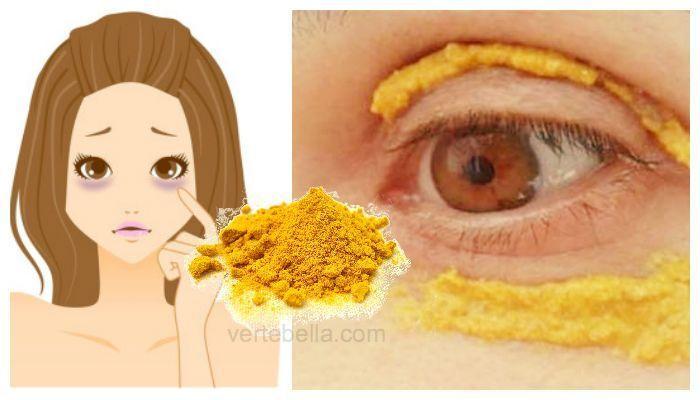 Curcuma para las ojeras. Coloca esta receta de cúrcuma alrededor de los ojos y en 10 minutos adiós ojeras. Mientras que la cúrcuma es un ingrediente imprescindible en la mayoría de los hogares de la India y para la mayoría de las cocinas indias con sus sabores y color amarillo dorado que es un complemento …