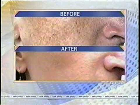 Laser treatment that zaps away all visible sun damage! - YouTube