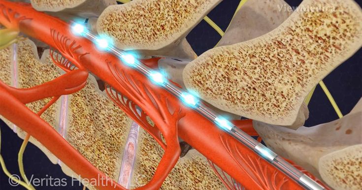 Spinal Cord Stimulator Implant Video- Spinal cord stimulation (SCS) implant uses electrical impulses to control or relieve chronic pain and is used in patients for whom conservative treatments have failed.