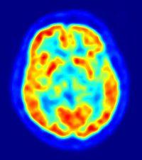 Positron emission tomography - Wikipedia, the free encyclopedia