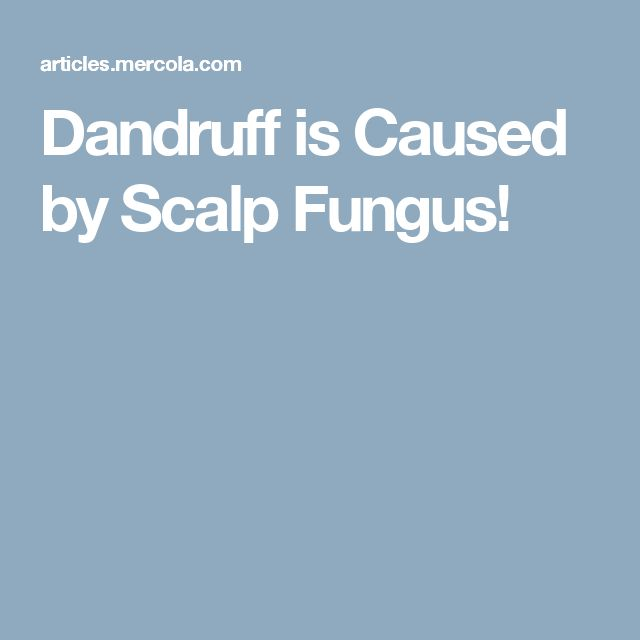 Dandruff is Caused by Scalp Fungus!