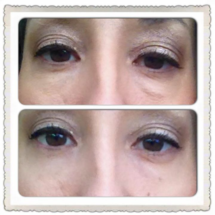 How can you get these results. 2-minutes Instantly Ageless !!! Message me for your results I can