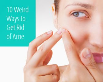 10 Unusual Ways to Clear Up Summer Acne