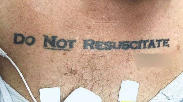 """Doctors Decide To Honor Unconscious Man's """"Do Not Resuscitate"""" Chest Tattoo"""