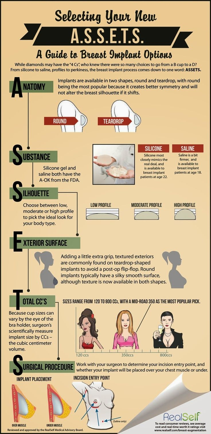 Breast implants info graphic
