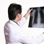 Pneumoniile infectioase – Afectiuni ale cailor respiratorii inferioare
