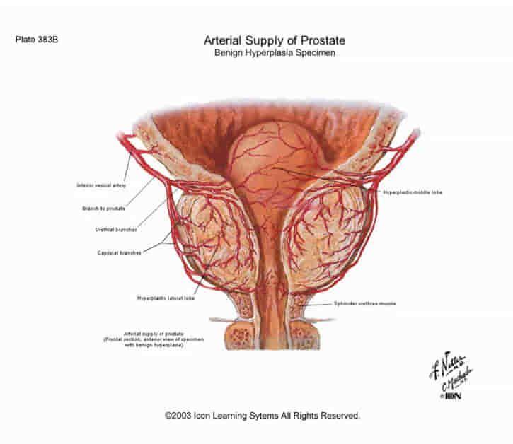 Ricta a prosztatitis kezelése 29 évesnél idősebb lehet prostatitis