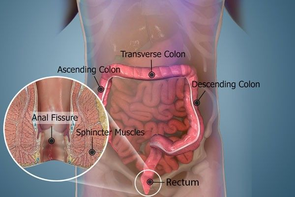 Simply, fissure is the ripping of the anal coating which results in extreme discomfort, itchiness and blood loss. The condition happens  when you have a hard bowel movement and generally impacts the anal midline. Intestinal problems and unclean conditions will result in the beginning of fissures. Due to the difficult activity of the bowels, a small split happen thereby destructive anal tissue. Ayurcure is a major middle that offers non-surgical and pain-less treatments for various ano-rectal