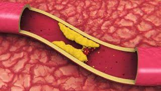 El Colesterol Elevado Es Culpa De Nuestras Madres?    http://ow.ly/pVMnY