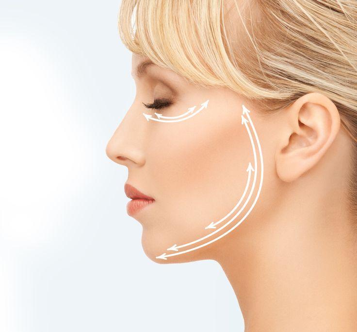 Vstřebatelné nitě Aptos 3D. Medical Institut