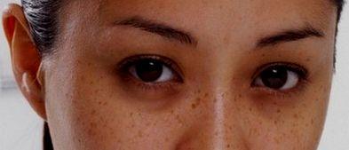 Cara alami yang ampuh mengatasi kulit hitam melingkar dibawah mata  http://www.kangalip.com/2016/12/cara-alami-yang-ampuh-mengatasi-kulit.html