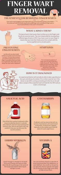 Finger Wart Removal.png (555×1600) <a class=pintag searchlink data-query=#wart data-type=hashtag href=/search/?q=#wart&rs=hashtag rel=nofollow title=#wart search Pinterest>#wart</a> removal #skin wart removal #home remedies for warts #ge http://www.wartalooza.com/general-information/are-warts-contagious