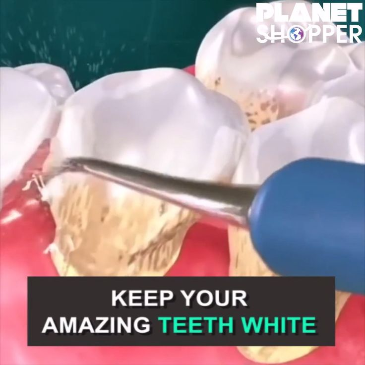 Helps safely remove stains and tarter from the teeth super