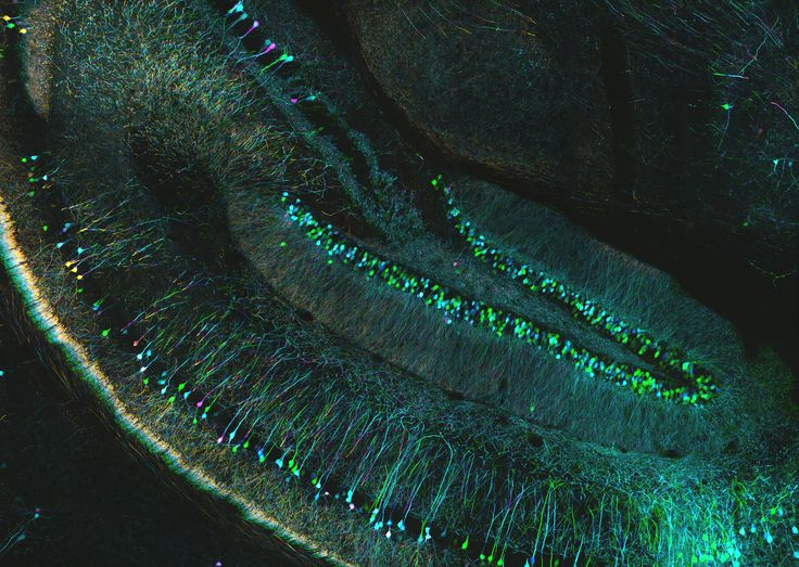 Confocal microscopy of mouse brain | Depth coded projection … | Flickr - Photo Sharing!