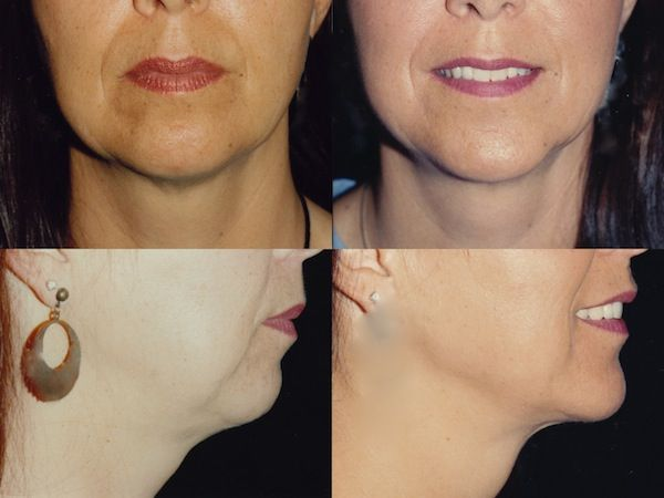Neck Liposuction Before and After Photos by Dr. Mark Anton. For more plastic surgery before and after pictures please visit http://www.antonaesthetics.com/neck-liposuction-photo-gallery/ #plasticsurgery #neck #naturalresults #goodplasticsurgery #lipo