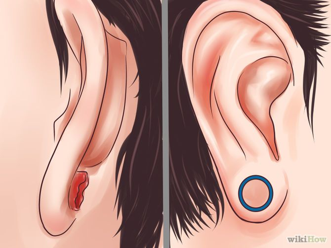how to make your stretched ears shrink
