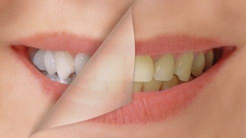 Vybieľte si zuby doma: Stačí pridať do vody túto surovinu a vypláchnuť raz denne! | Chutne a zdravo | Preženu.sk