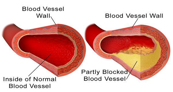 10-Foods-to-Clean-Your-Arteries-of-Plaque-Buildup-without-Medications