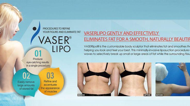 Vaser Liposuction In La