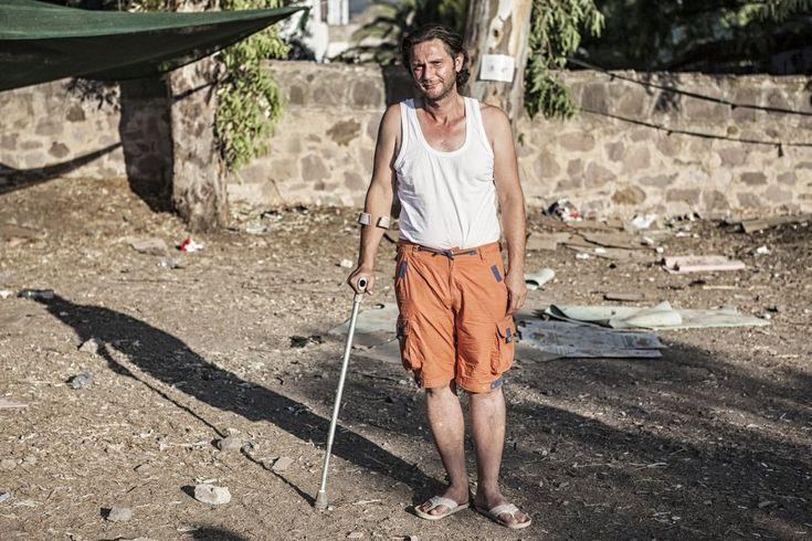 Imad, 35 años, trabajaba como operador de mercancías en Alepo (Siria) hasta que un disparo de un francotirador le fracturó la pelvis y el fémur. Tras desembarcar en Lesbos, espera poder operarse en Europa para nivelar sus dos piernas.