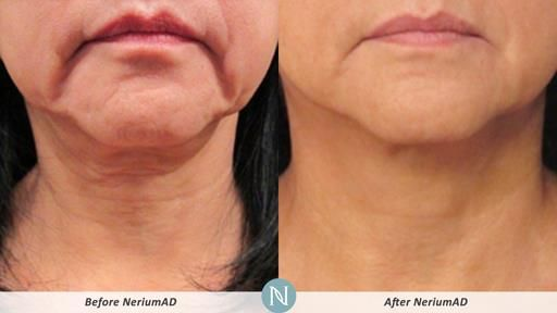 Real Results with NeriumAD!
