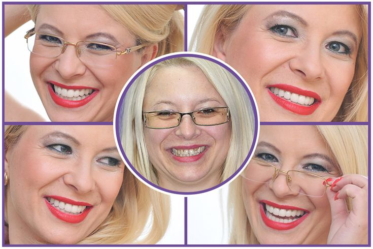 #Dental facelift procedures http://medicaltours.co.uk/blog/blog_mod/dental-aesthetics-dental-facelift-procedures/