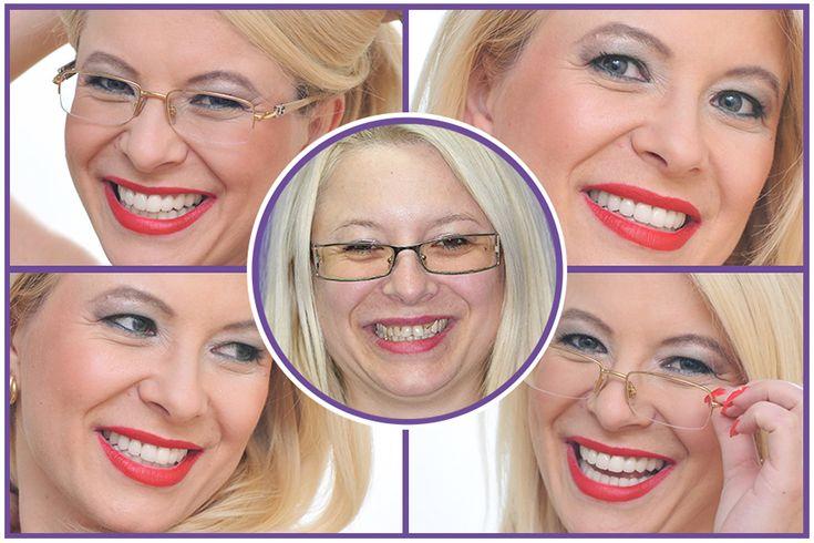 #Dental facelift procedures http://medicaltours.co.uk/blog/blog_mod/dental-aesthetics-dental-facelift-procedures/