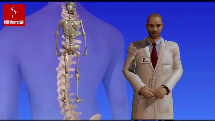 Επ. 3Β | Παρουσίαση Νέας θεραπείας Σκολίωσης Crass Cheneau  (animation)