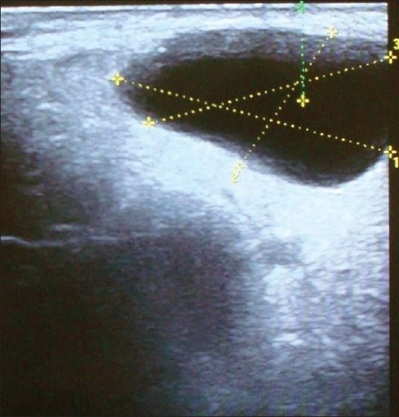Ultrasonographic image longitudinal view of the left preauricular region shows a well-defined anechoic area measuring 3.3 × 1.9 × 3 cm seen in the superficial part of the left parotid gland.