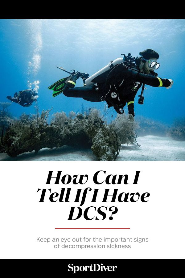 Keep an eye out for the important symptoms of decompression sickness. Decompression sickness (DCS) is one of the hazards that every diver must manage individually. DCS can afflict any diver, and the condition is the result of inert gases that are dissolved in the blood during a dive coming out of solution too rapidly.