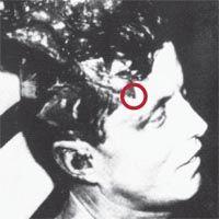 Kennedy Autopsy Photographs X-rays | Autopsy Photos Of Jfk Jr