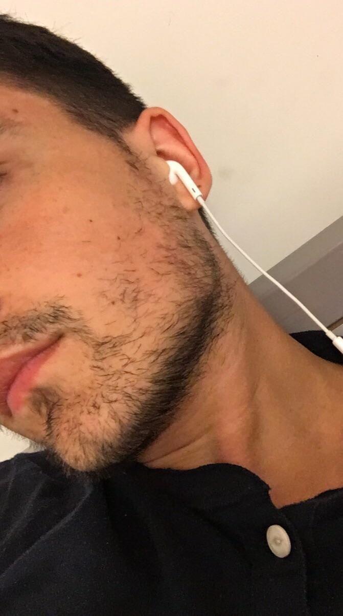 Average facial hair has analogues?