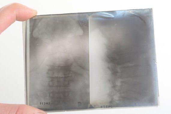 Fotografía antigua de radiografía antigüedades por Brocantebcn #medicalpictures #medicalimages #mediaclantique