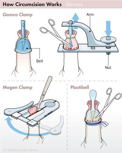How Circumcision Works  Health  Circumcision, Newborn -8163