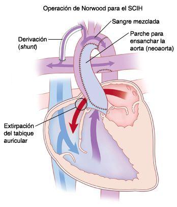 Tratamiento del ventrículo hipoplásico de su hijo: Primera etapa
