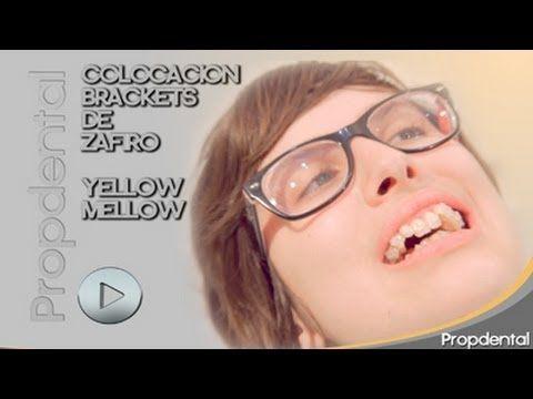 Colocación brackets de ortodoncia - Brackets de zafiro ortodoncia vblogger Mellow