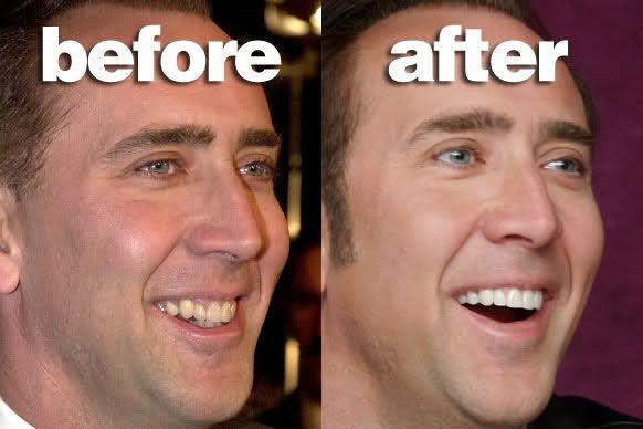 42 Best Teeth | before & after images | Celebrity smiles ...