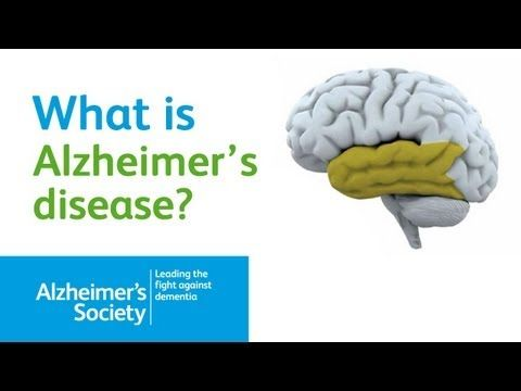 an introduction to the alzheimers disease in todays society Link found between concussions, alzheimer's disease date: january 12,  link found between concussions, alzheimer's disease  science & society.